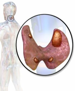 3D image of abnormal parathyroid glands